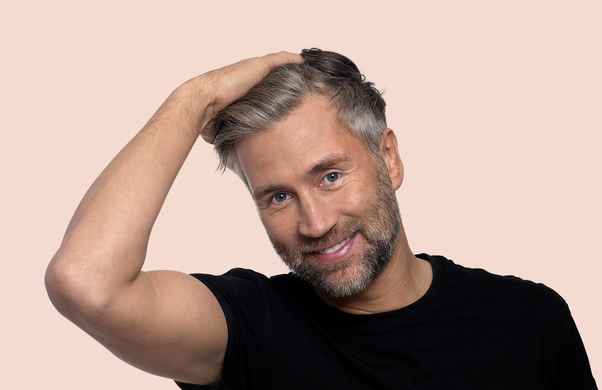 Breaking the stigma of male hair loss