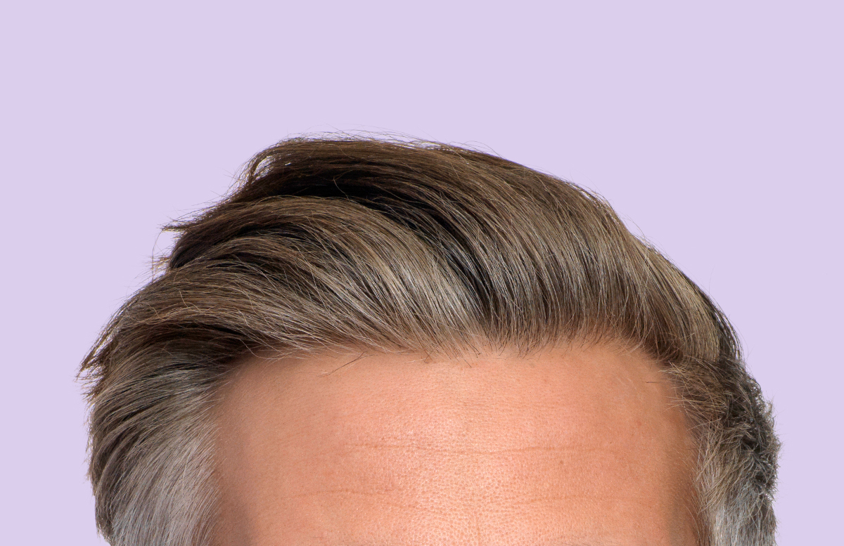 The top reasons men don't discuss hair loss