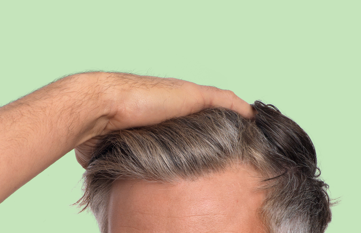The various stages of hair loss